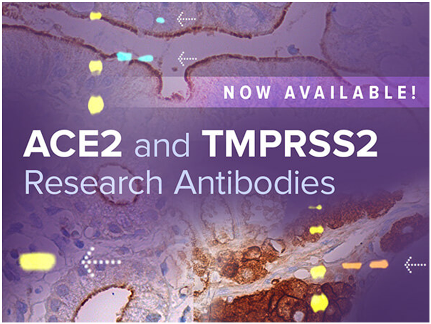 ACE2_and_TMPRSS2_Research_Antibodies_Available_2.PNG