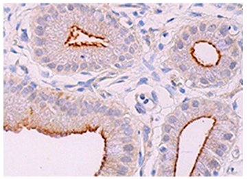 ACE2_and_TMPRSS2_Research_Antibodies_Available_3.PNG