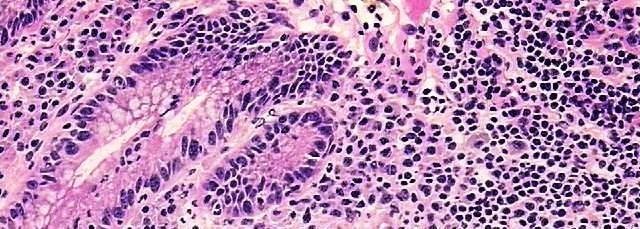 Crohn's_&_Colitis_Awareness-Human_Tissues_for_Research_2.jpg